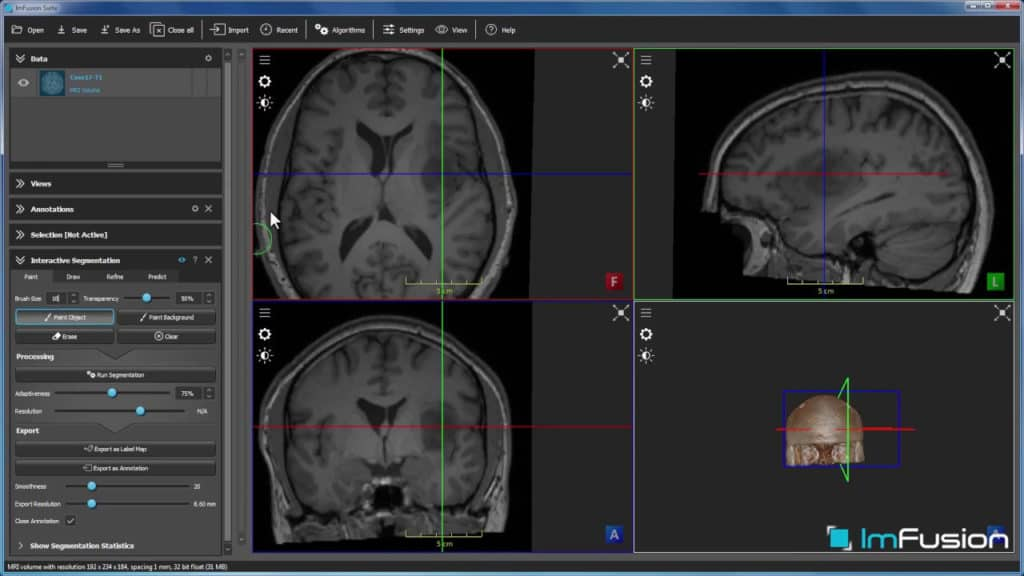 Interactive Medical Imaging